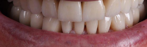 erosiones dentales y apnea