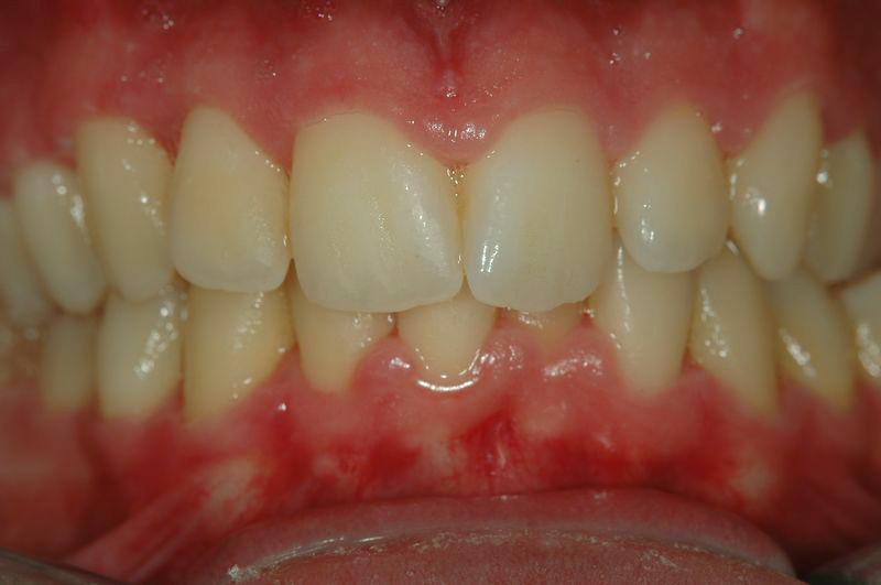 Gingivitis úlcero necrótica aguda antes