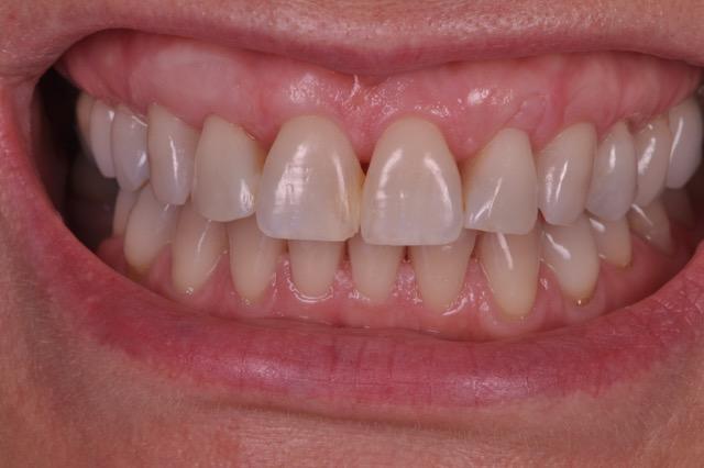 estética periodontal