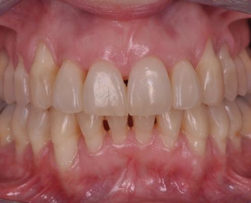 periodontítis avanzada