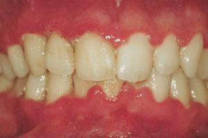 gingivitis aguda