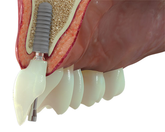 implantes dentales bilbao