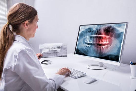 implantes clinica dental bilbao