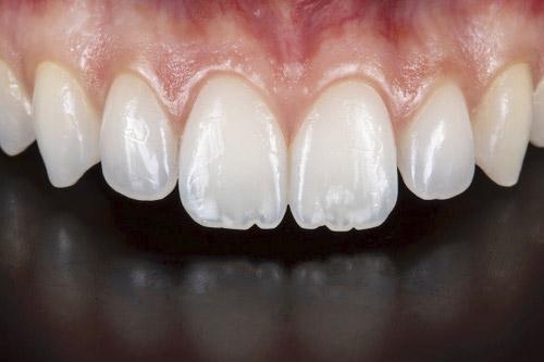 periodoncista bilbao