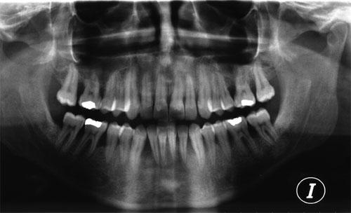 ortopantomografia periodontitis