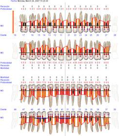 periodontograma