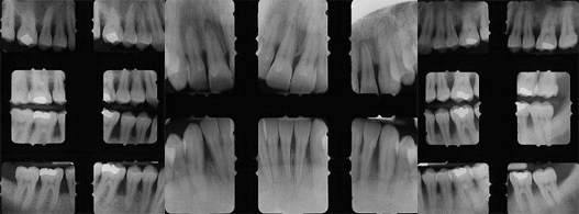diagnostico periodontitis