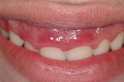 alargamiento dientes cortos-1_antes