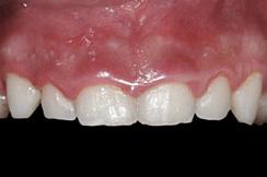 alargamiento dientes cortos-2_antes
