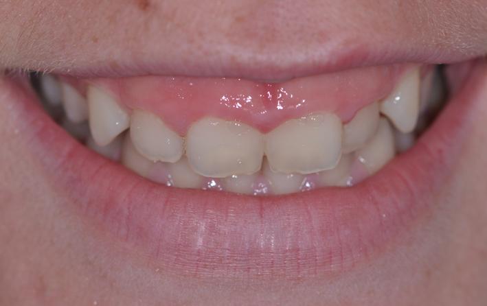 alargamiento dientes cortos-3_antes