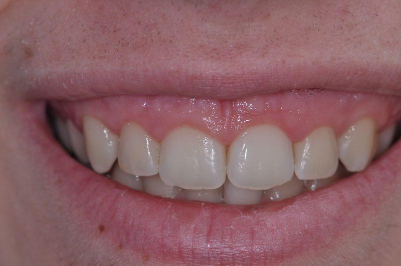 alargamiento dientes cortos-4_antes