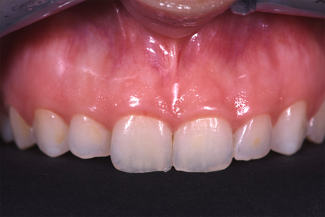 alargamiento dientes cortos-5_despues