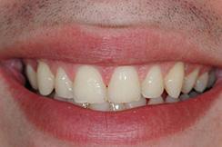 alargamiento dientes cortos-1_despues
