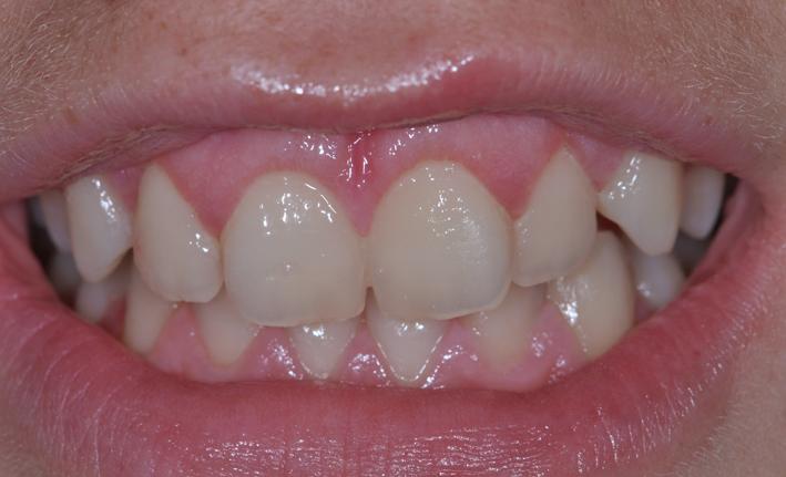 alargamiento dientes cortos-3_despues