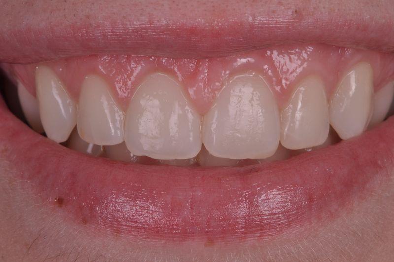 alargamiento dientes cortos-6_despues