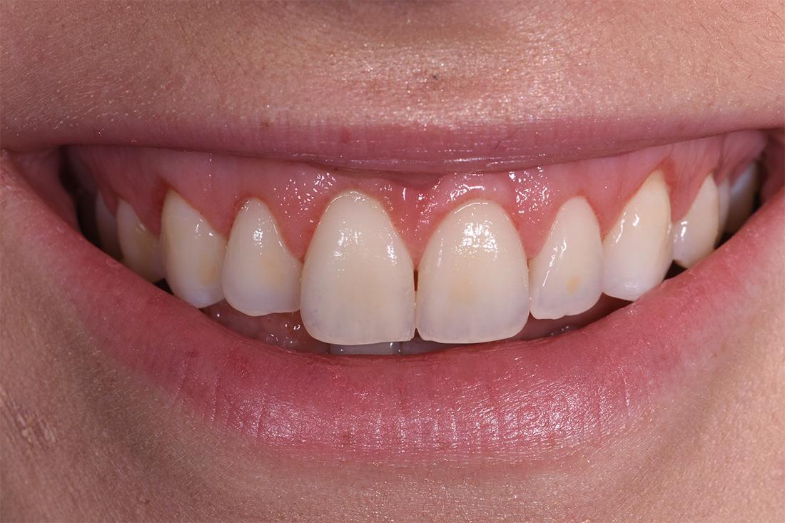 alargamiento dientes cortos-4_despues