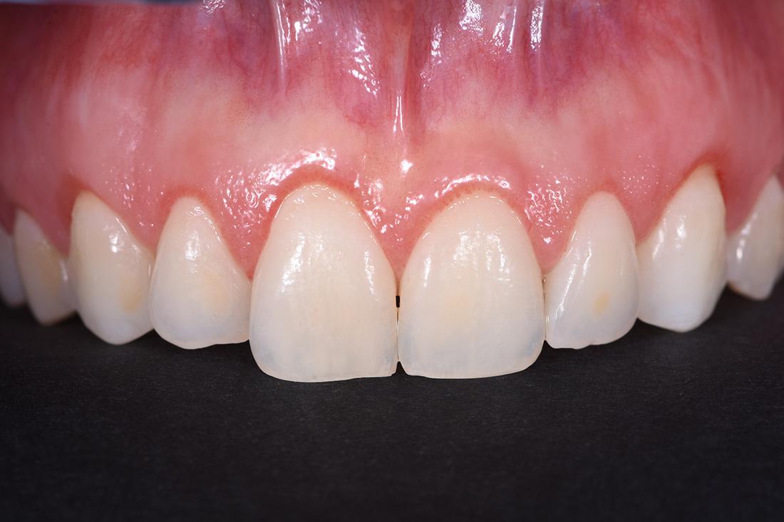 alargamiento dientes cortos-5_antes